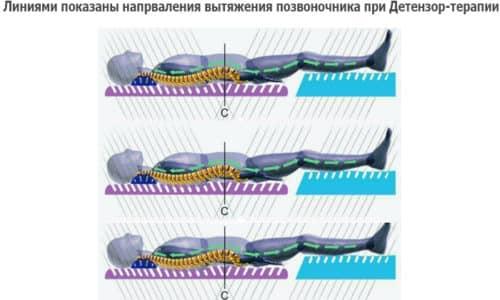Лечебный эффект Детензор-терапии обеспечивается благодаря пассивному вытяжению позвоночника