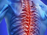Какие методы используются для лечения грыжи Шморля