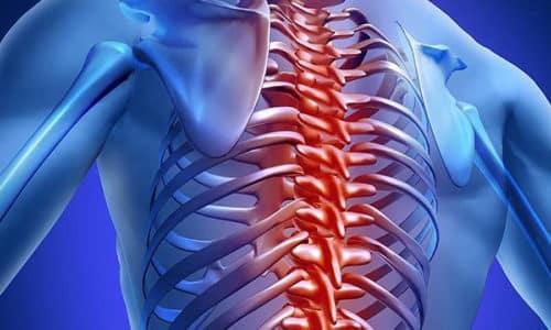 Грыжа позвоночника является осложнением остеохондроза. Наблюдается данная патология у людей среднего возраста (30-45 лет)