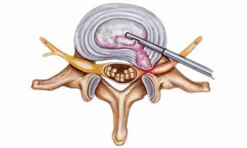 Эндоскопическое удаление грыжи позвоночника основывается на введении оптических и хирургических инструментов через небольшие проколы