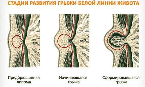 Главные признаки грыжи у малыша - выпячивание по передней поверхности живота