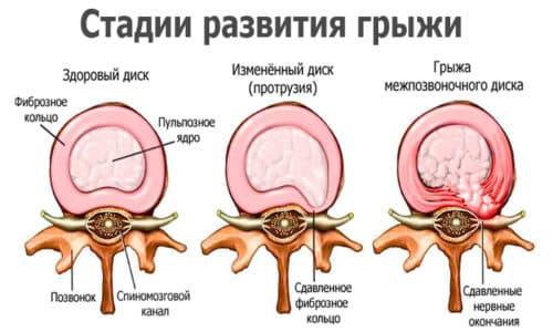 Иглоукалывание используется на разных этапах развития патологии