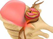 Причины возникновения и лечение грыжи Шморля в поясничном отделе позвоночника