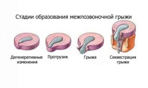 В здоровом состоянии кольцо является упругим и эластичным, но различные внешние факторы могут привести к его дегенеративным изменениям, в результате чего развивается грыжа позвоночного столба