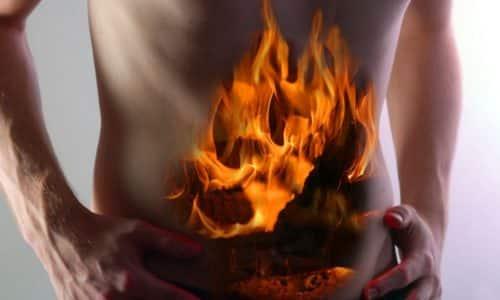 Изжога один из выраженных симптомов грыжи пищеводного отверстия диафрагмы