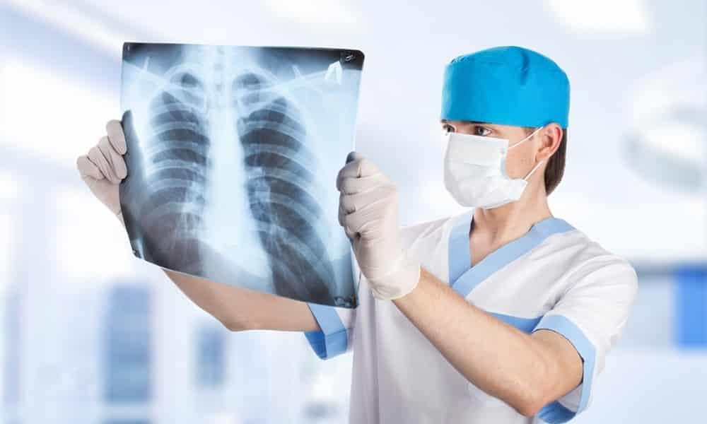 Стандарт для выявления ГПОД — рентгенография органов грудной клетки с применением контрастного вещества