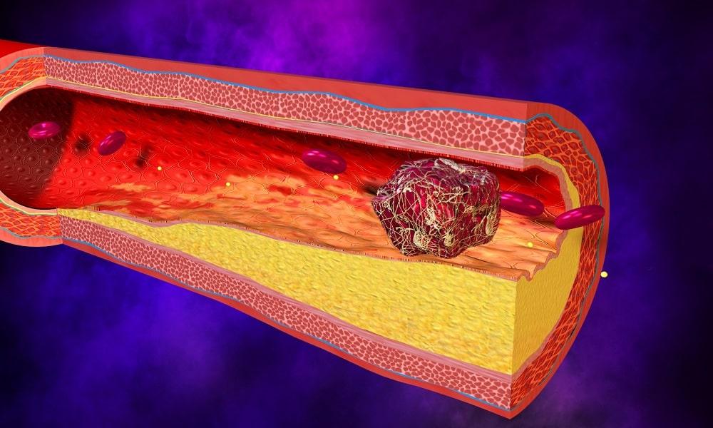 При тромбозе нельзя проводить лечение грыжи позвоночника Витафоном