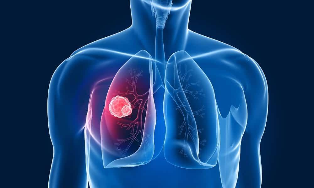 Магнитотерапия запрещается при туберкулезе