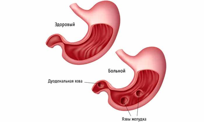 Также грыжа образовывается из-за заболевания желудка