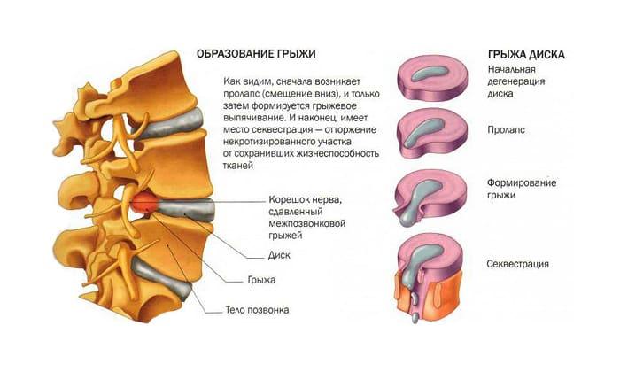 Признаками грыжи позвоночного столба чаще боль в шейном, грудном отделе обусловленная защемлением нервных корешков