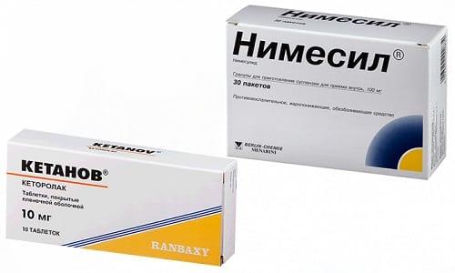 Для устранения болевого синдрома при воспалительных заболеваниях и травмах часто назначаются Нимесил и Кетанов